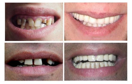 Dăruiește zâmbete și sănătate - proiect dentar
